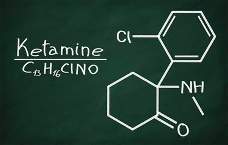 ketamine treatment in miami for depression