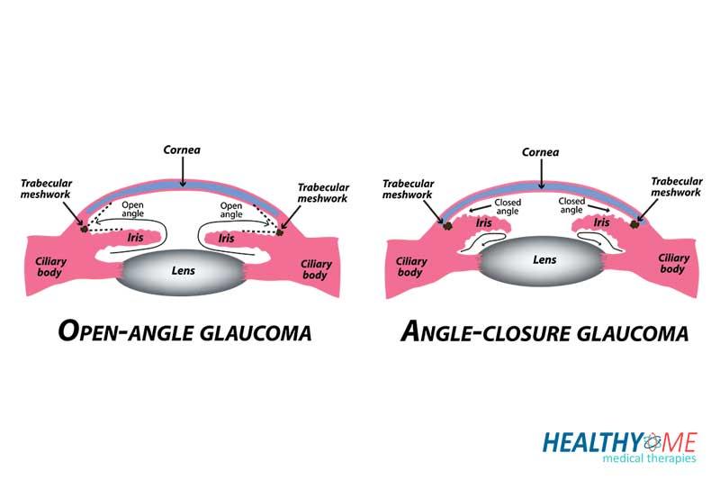 types of glaucoma treatmetn